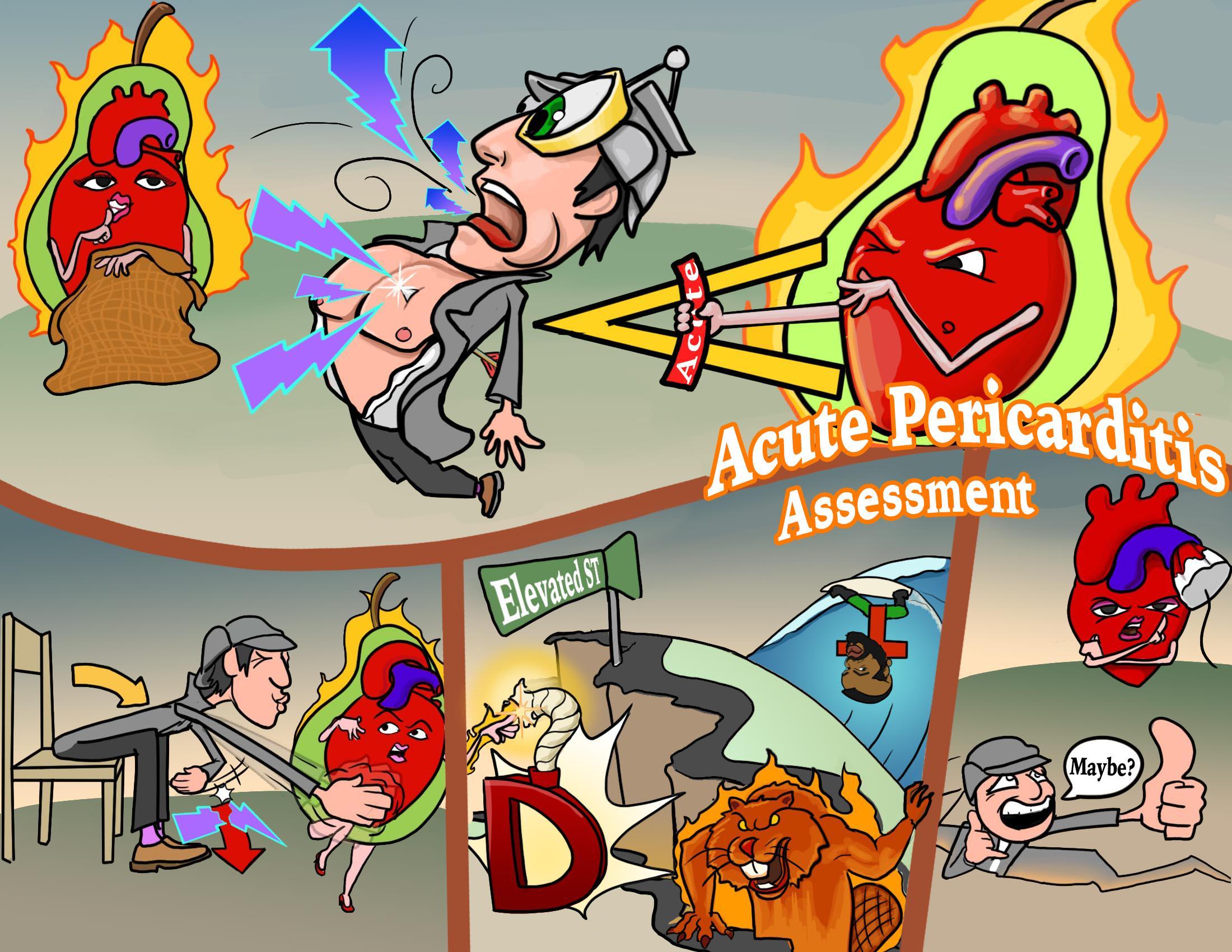 Acute Pericarditis Assessment