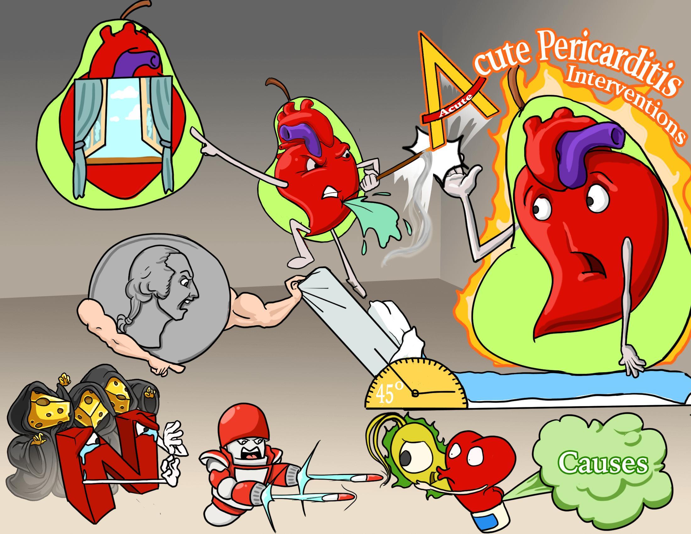 Acute Pericarditis Interventions