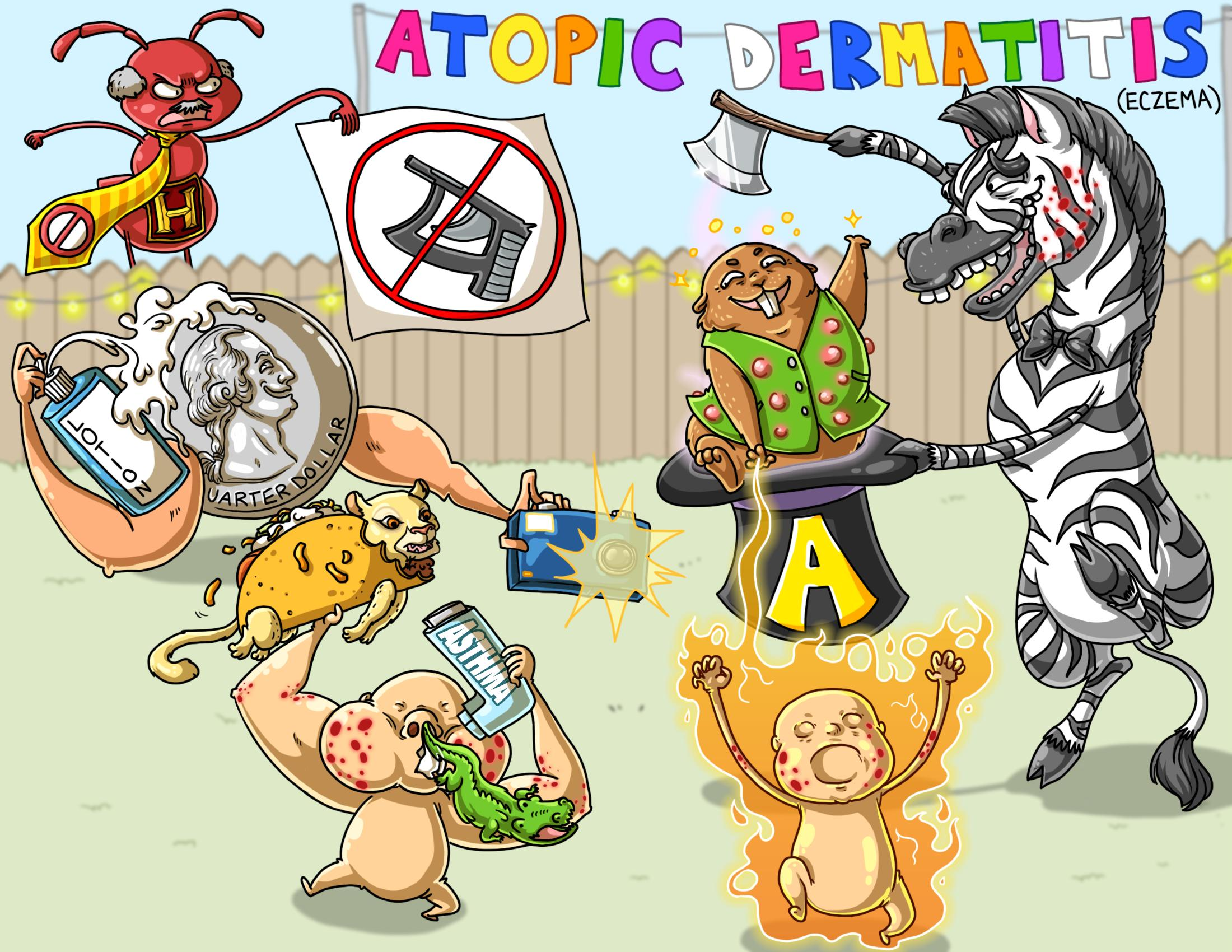 Atopic Dermatitis / Eczema