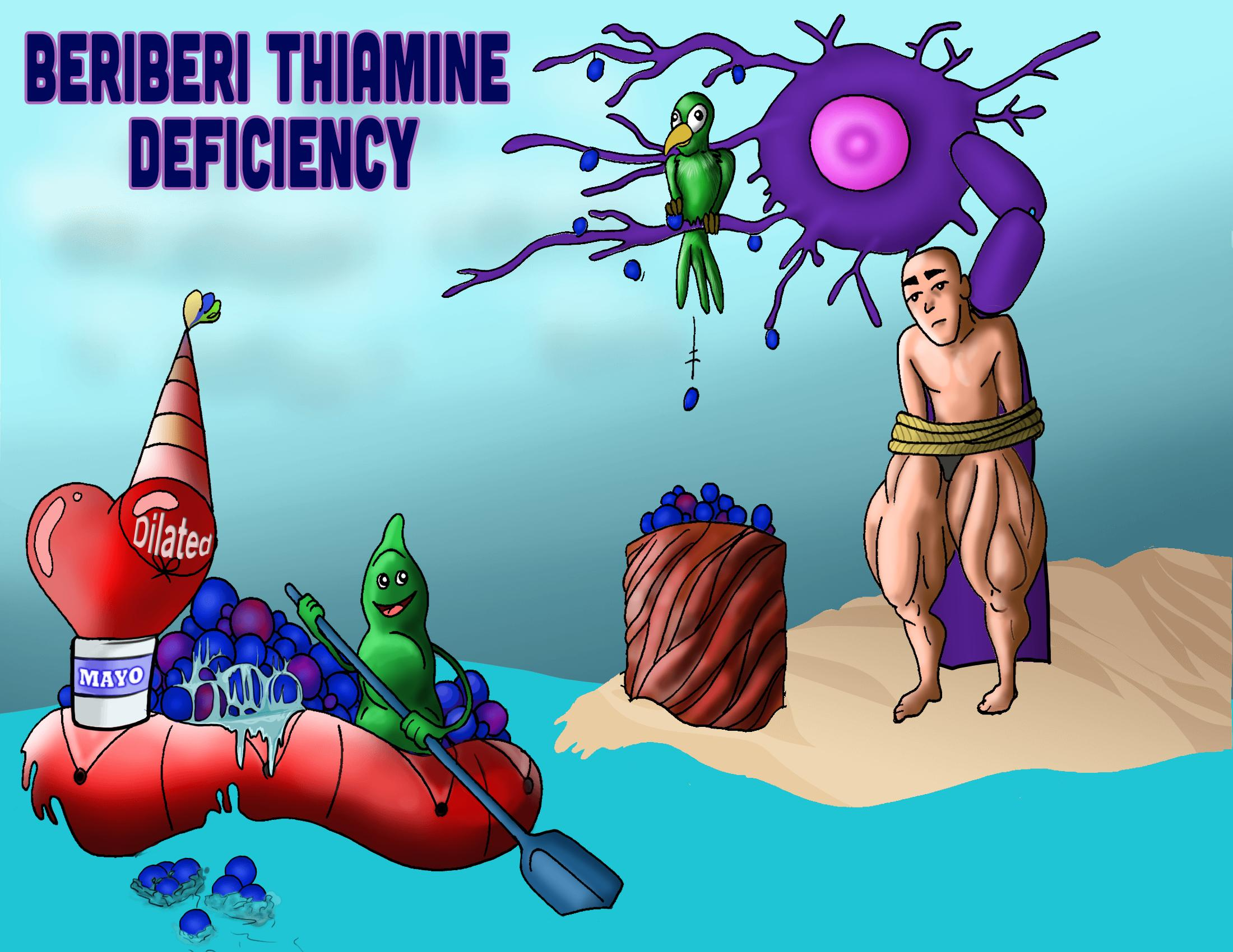 Beriberi (Thiamine Deficiency)