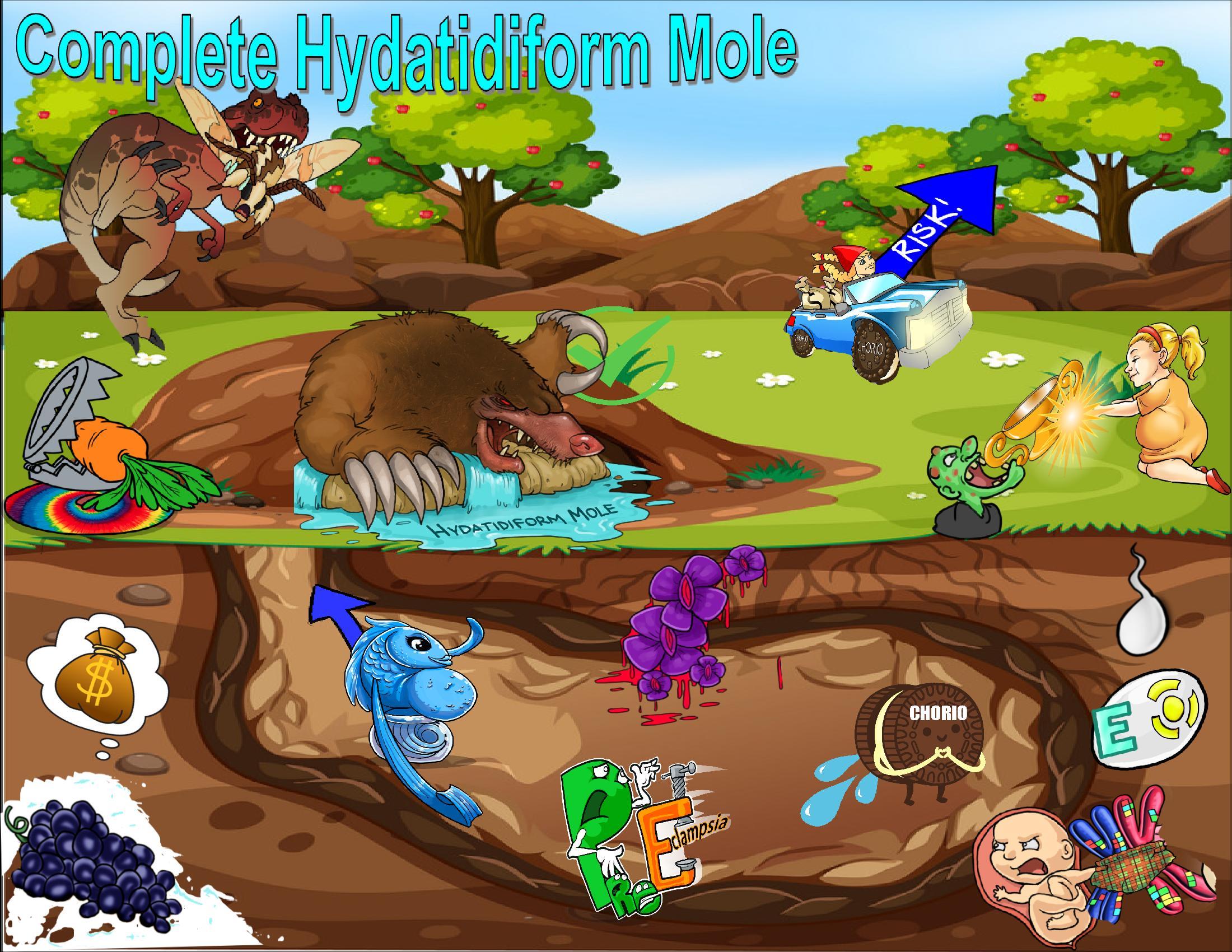 Complete Hydatidiform Mole