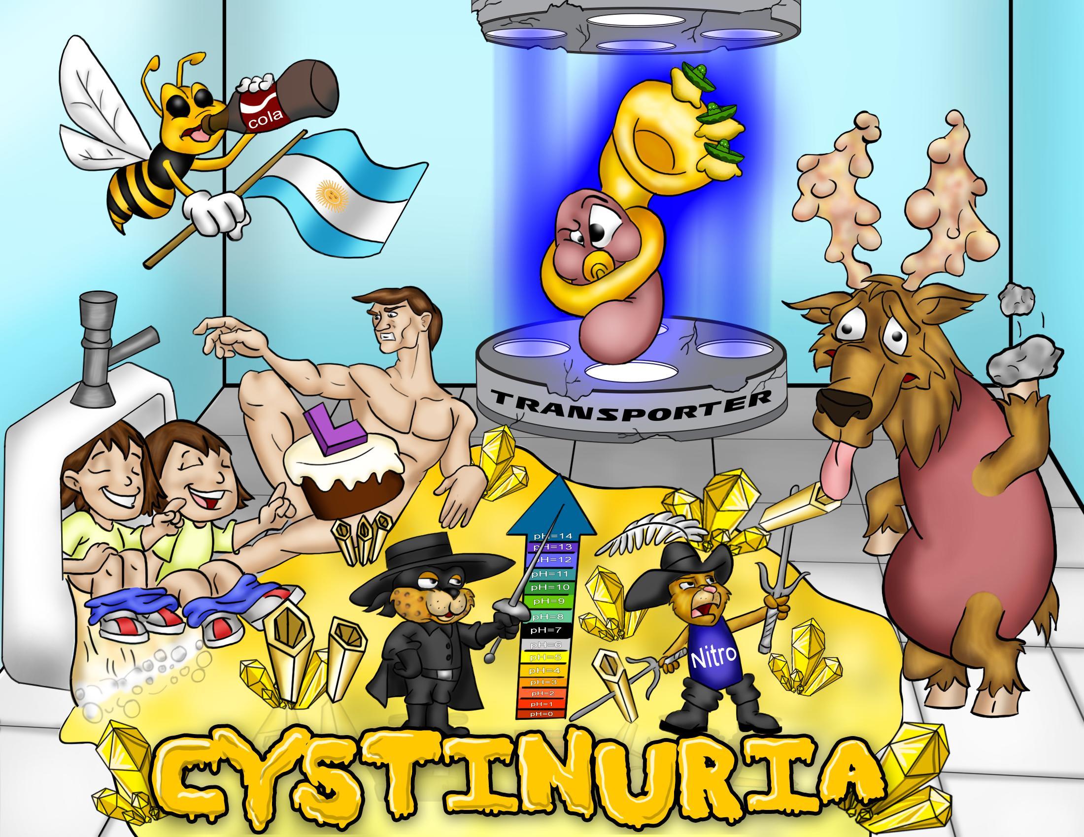 Cystinuria