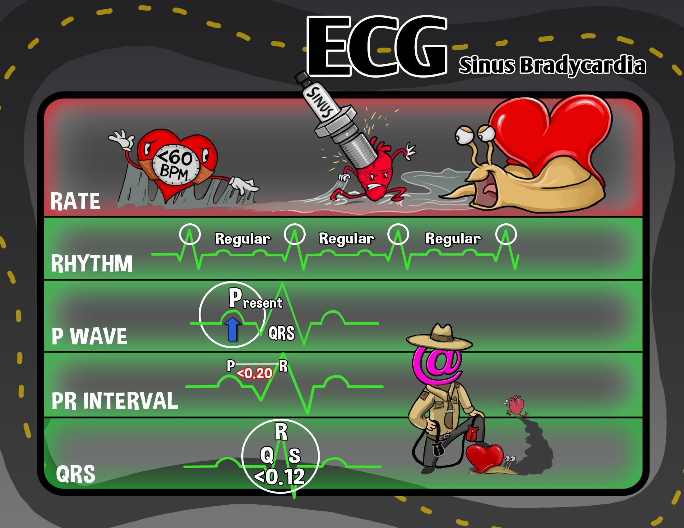 ECG: Sinus Bradycardia