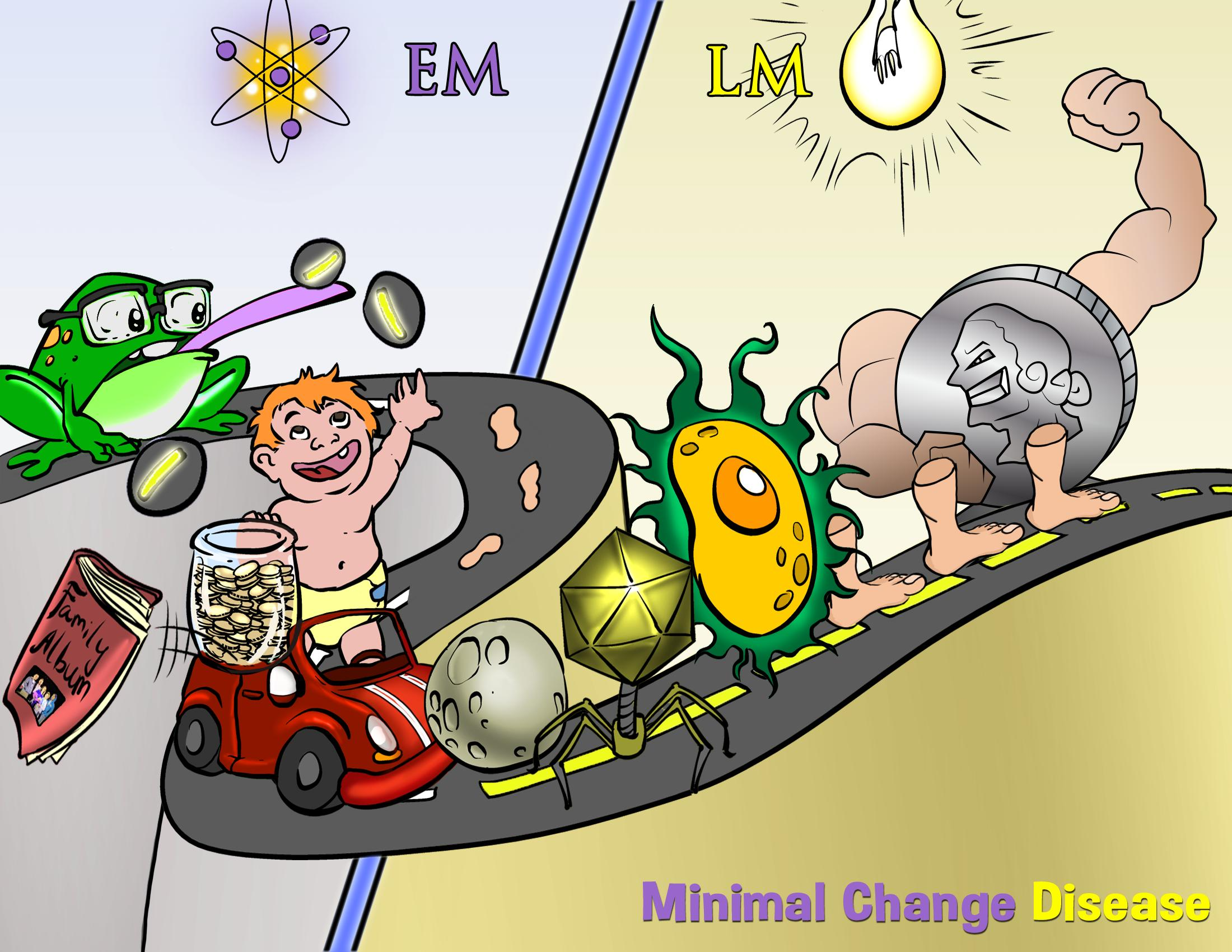 Minimal Change Disease