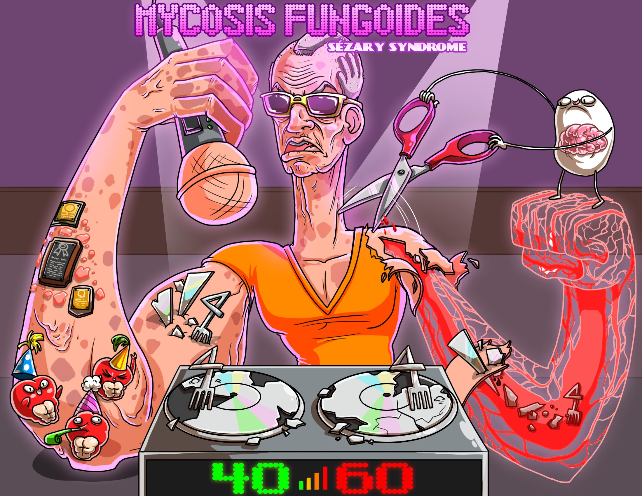 Mycosis Fungoides / Sézary Syndrome