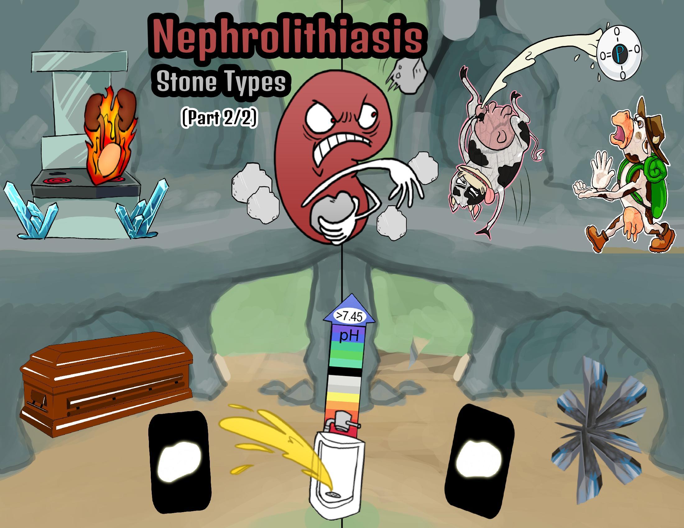 Nephrolithiasis Stone Types (Part 2/2)