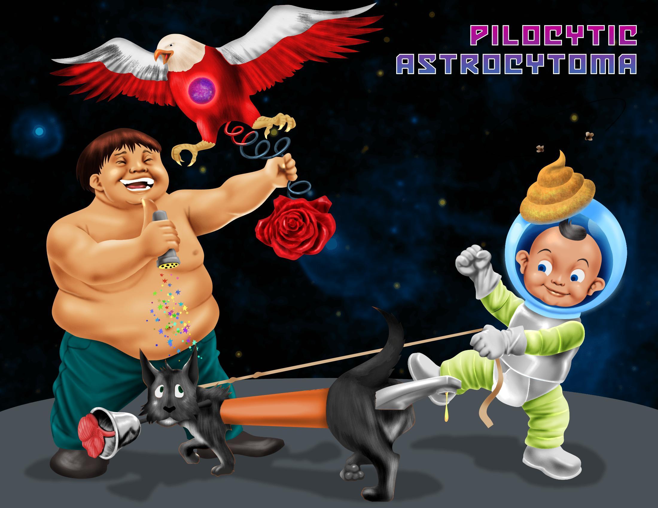 Pilocytic Astrocytoma