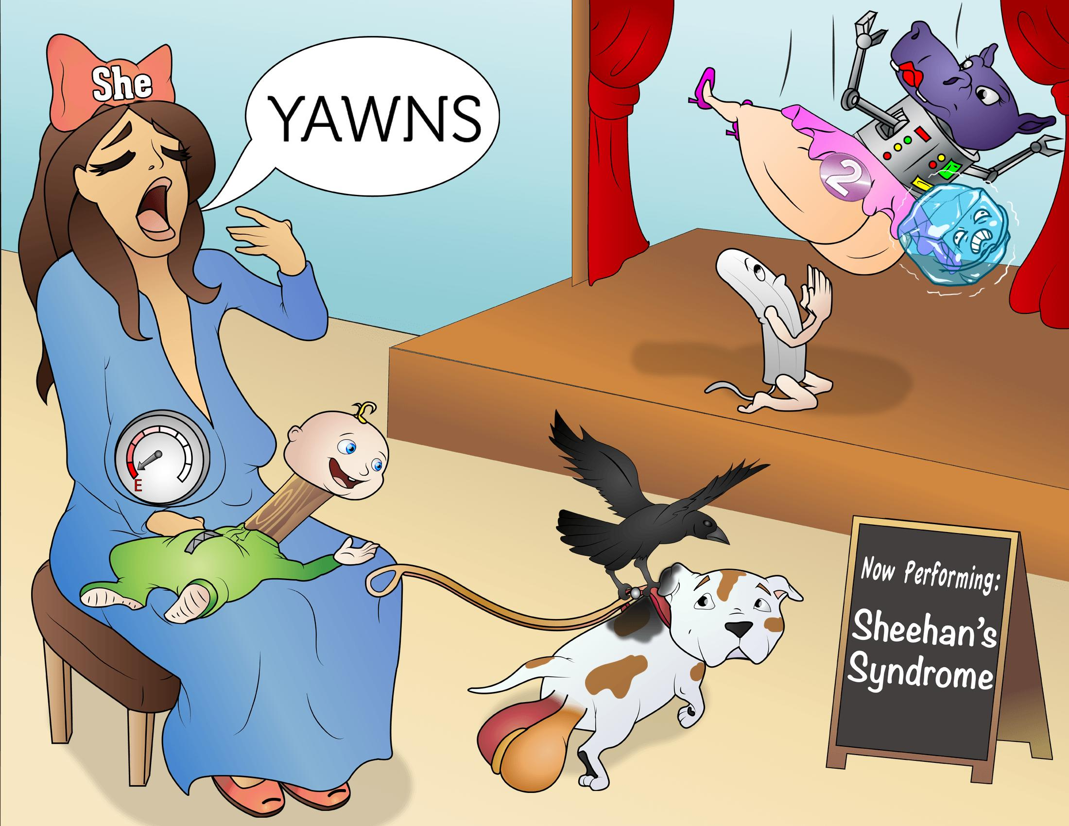 Sheehan's Syndrome