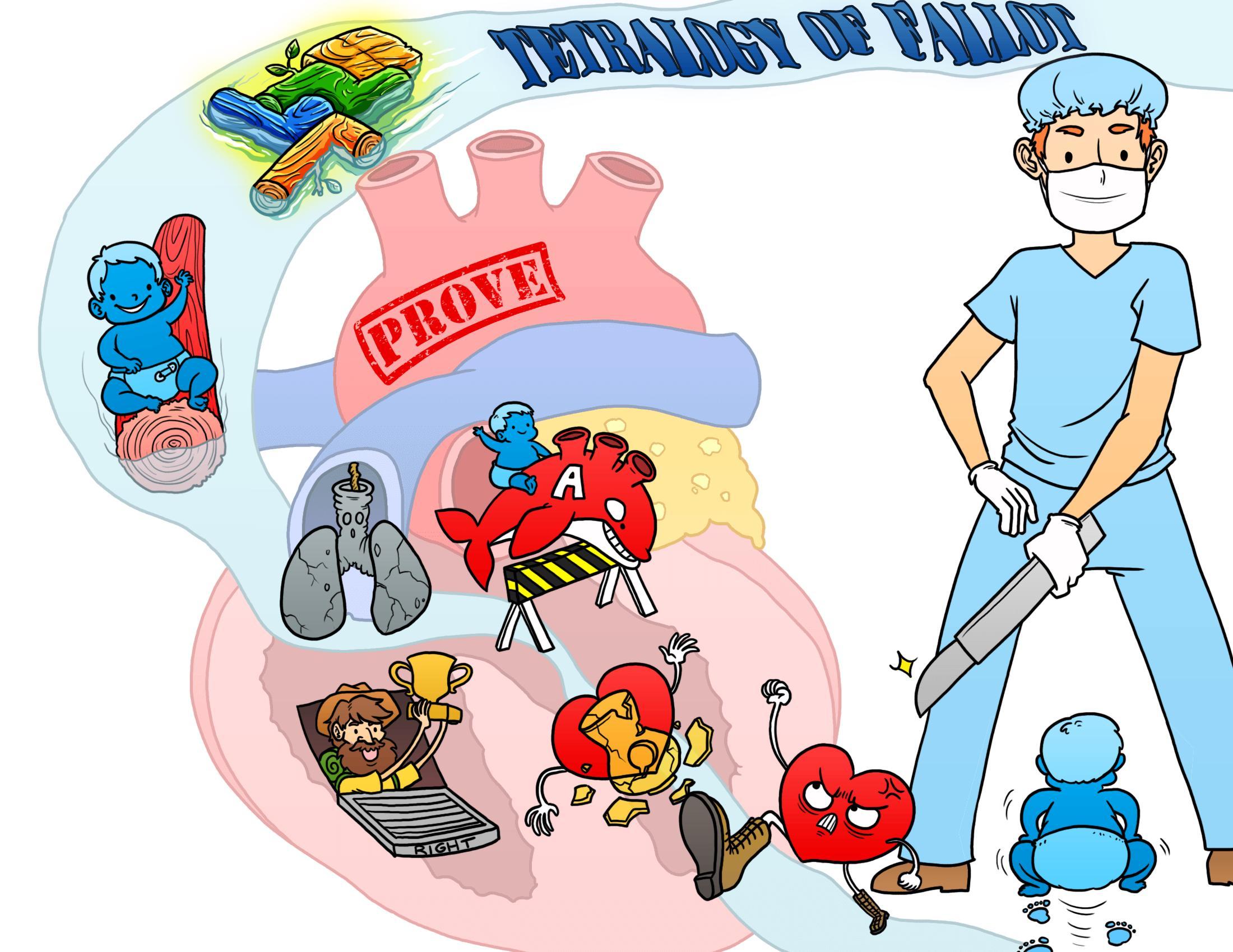 Tetralogy of Fallot (TOF)