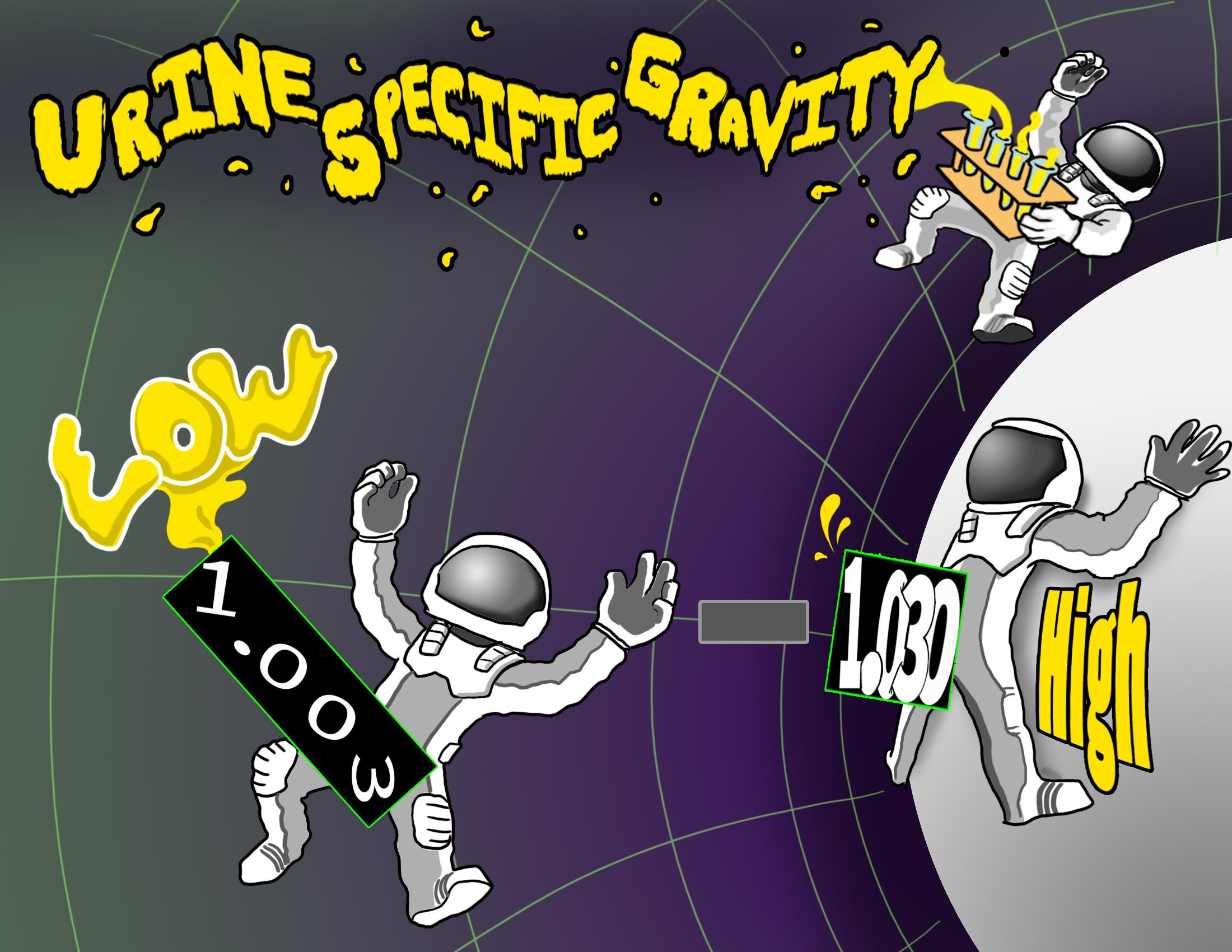 Urine Specific Gravity Lab Value