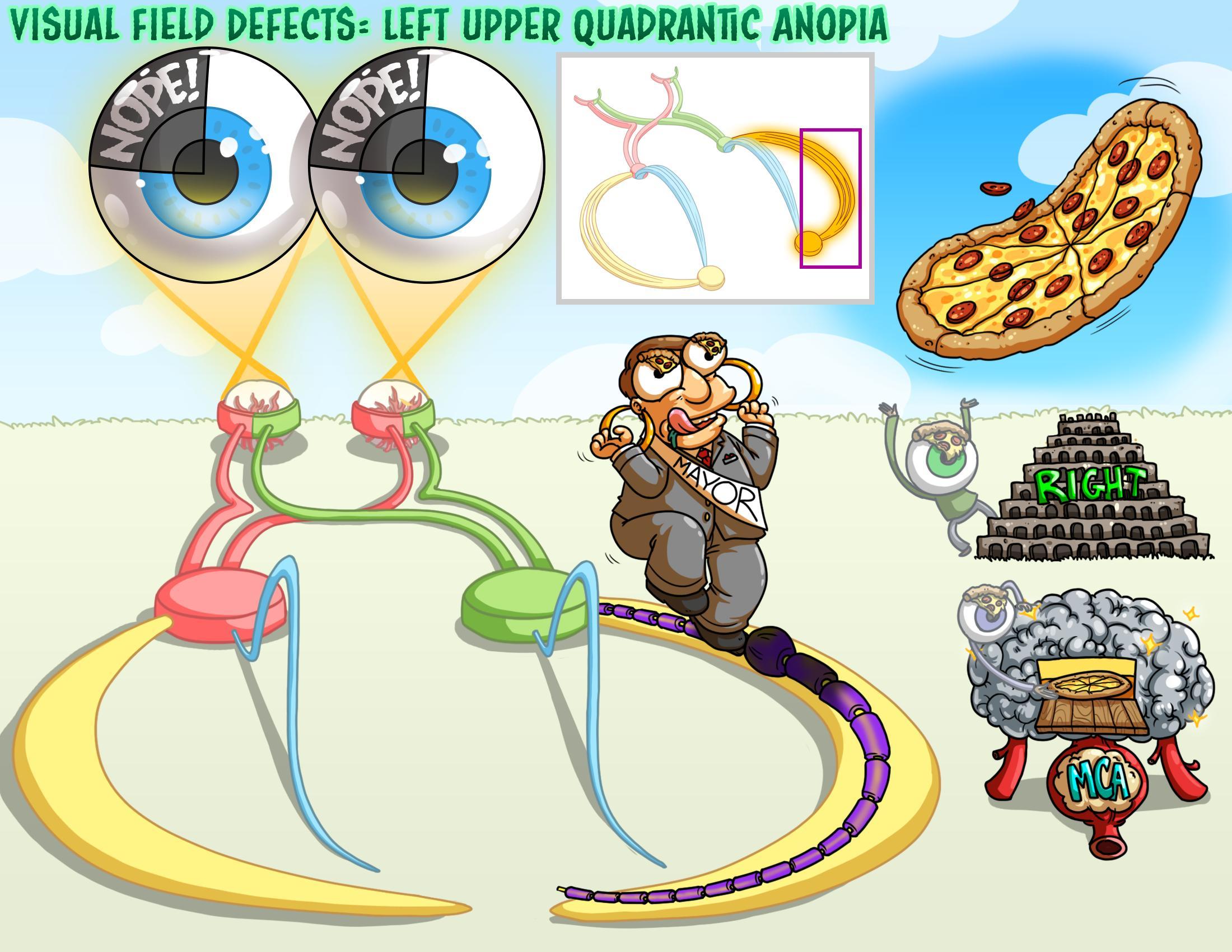 Visual Field Defects - Left Upper Quadrantic Anopia