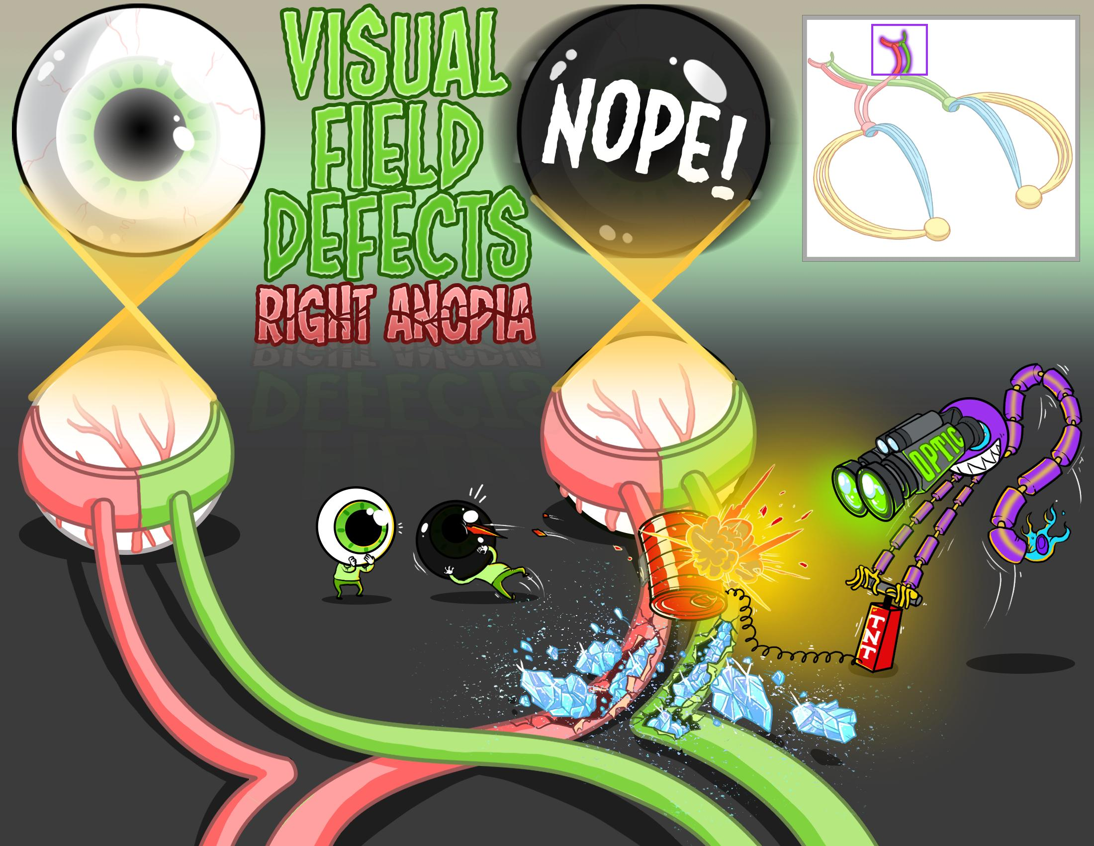 Visual Field Defects - Right Anopia