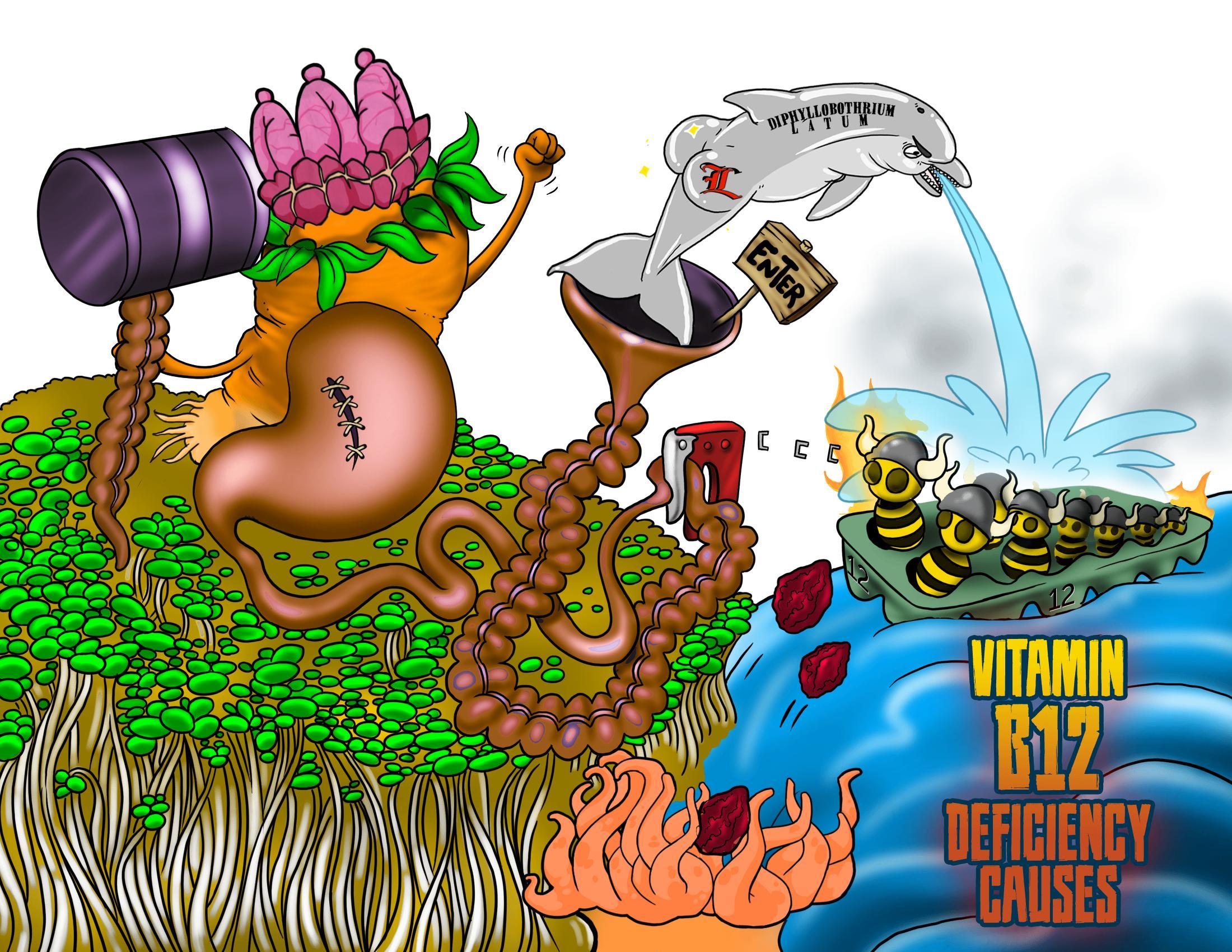 Vitamin B12 (Cobalamin) Deficiency Causes