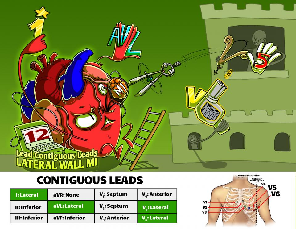 12 Lead Contiguous Leads - Lateral Wall MI