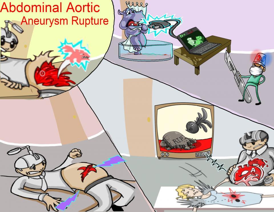 Abdominal Aortic Aneurysm Rupture