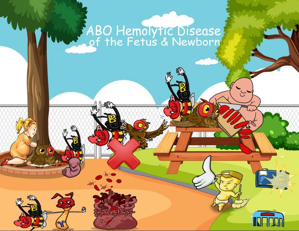 ABO Hemolytic Disease of the Fetus and Newborn