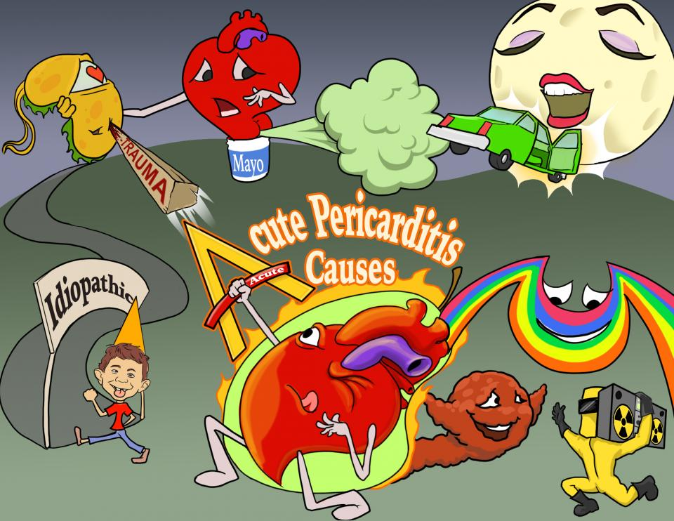 Acute Pericarditis Causes