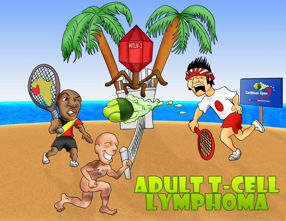 Adult T Cell Lymphoma