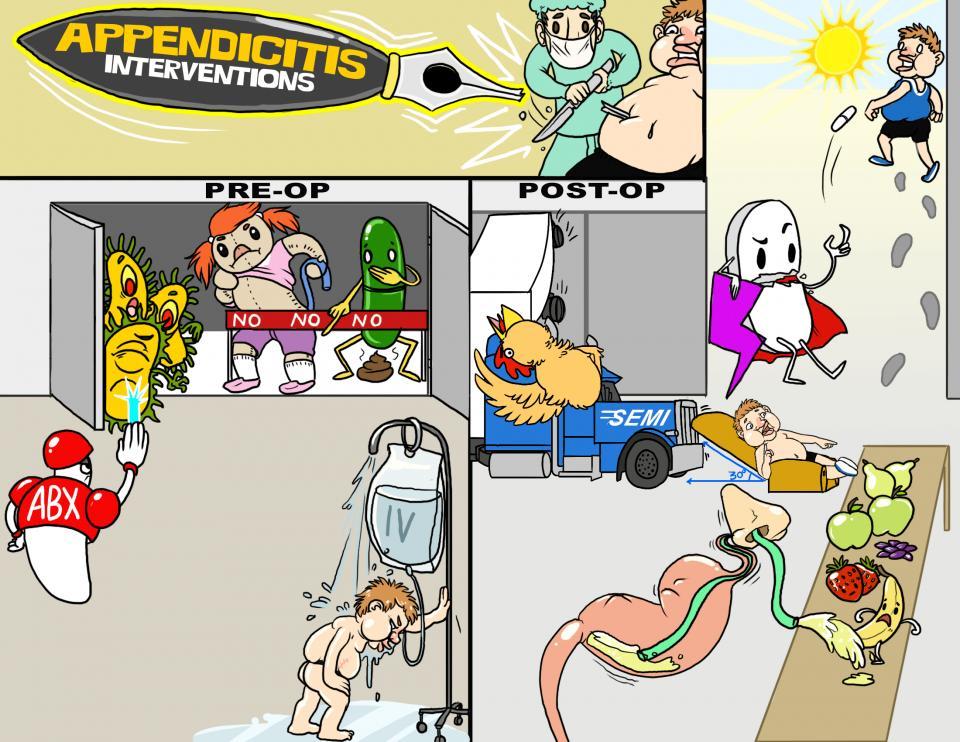 Appendicitis Interventions