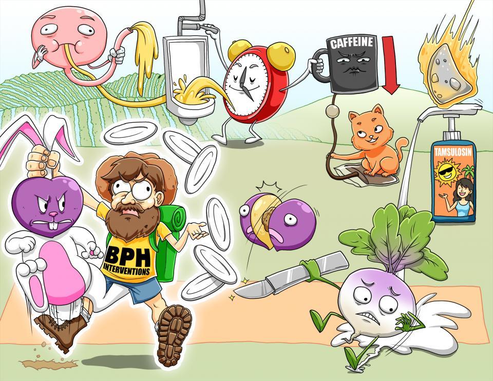 Benign Prostatic Hyperplasia (BPH) Interventions