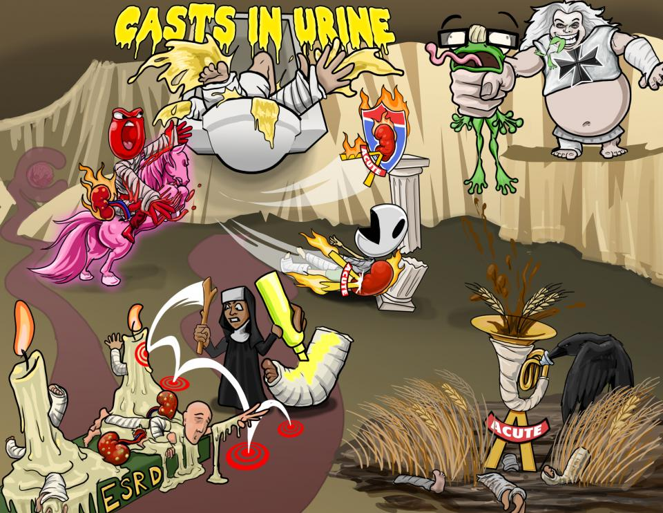 Casts in Urine (Differential Diagnosis)