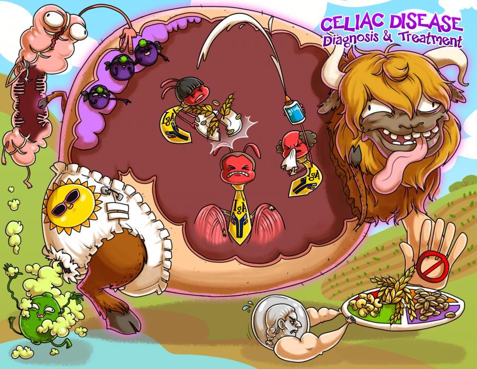 Celiac Disease Diagnosis and Treatment