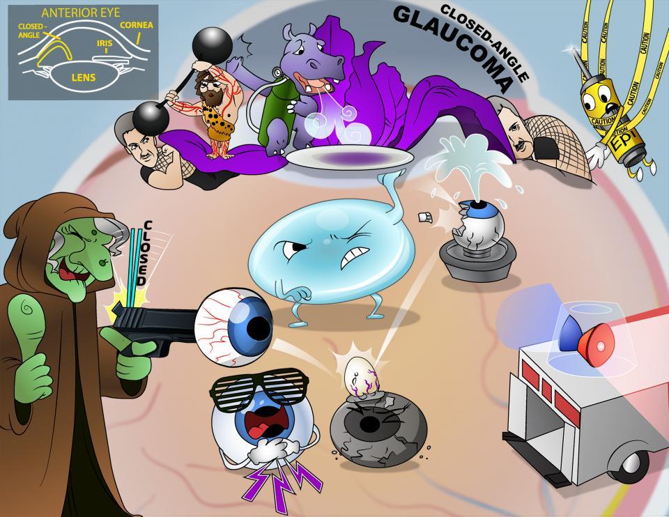 Closed-Angle Glaucoma