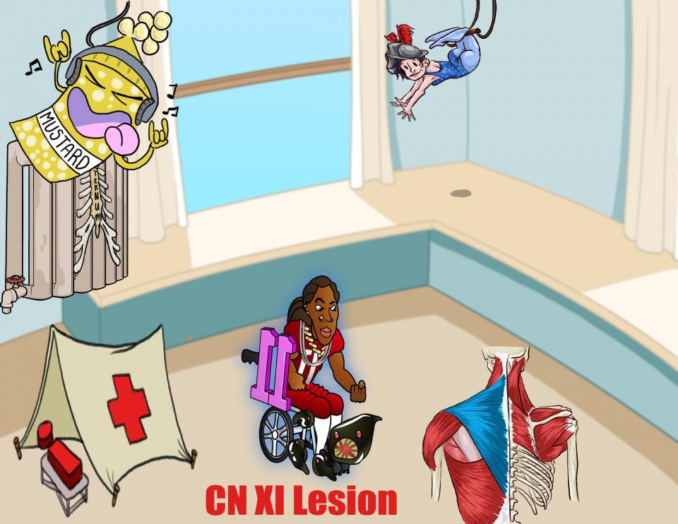 CN XI Lesion