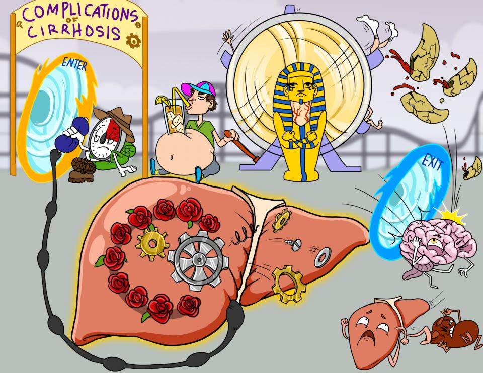 Complications of Cirrhosis