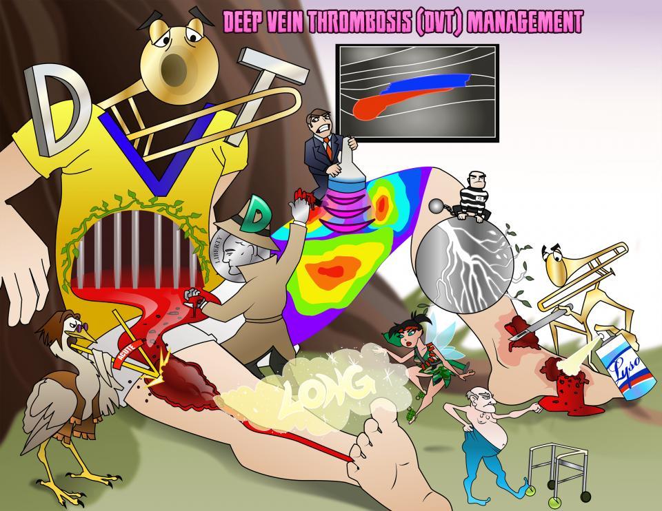 Deep Vein Thrombosis (DVT) Management