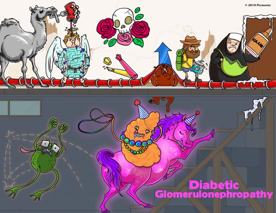 Diabetic Glomerulonephropathy
