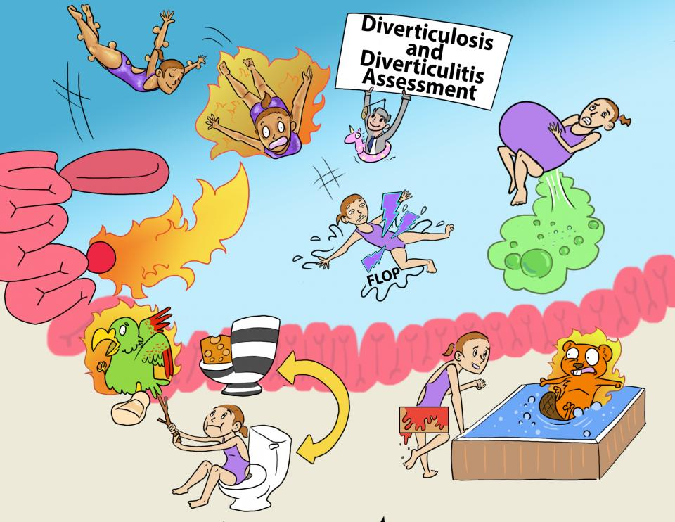 Diverticulosis and Diverticulitis Assessment