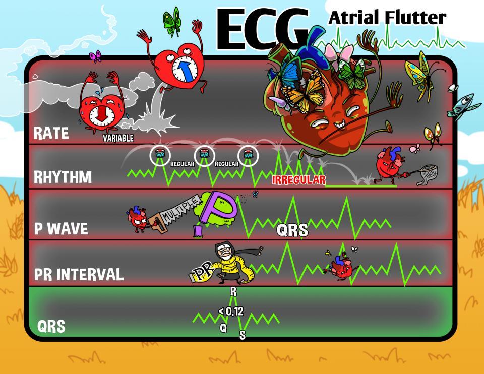 ECG: Atrial Flutter