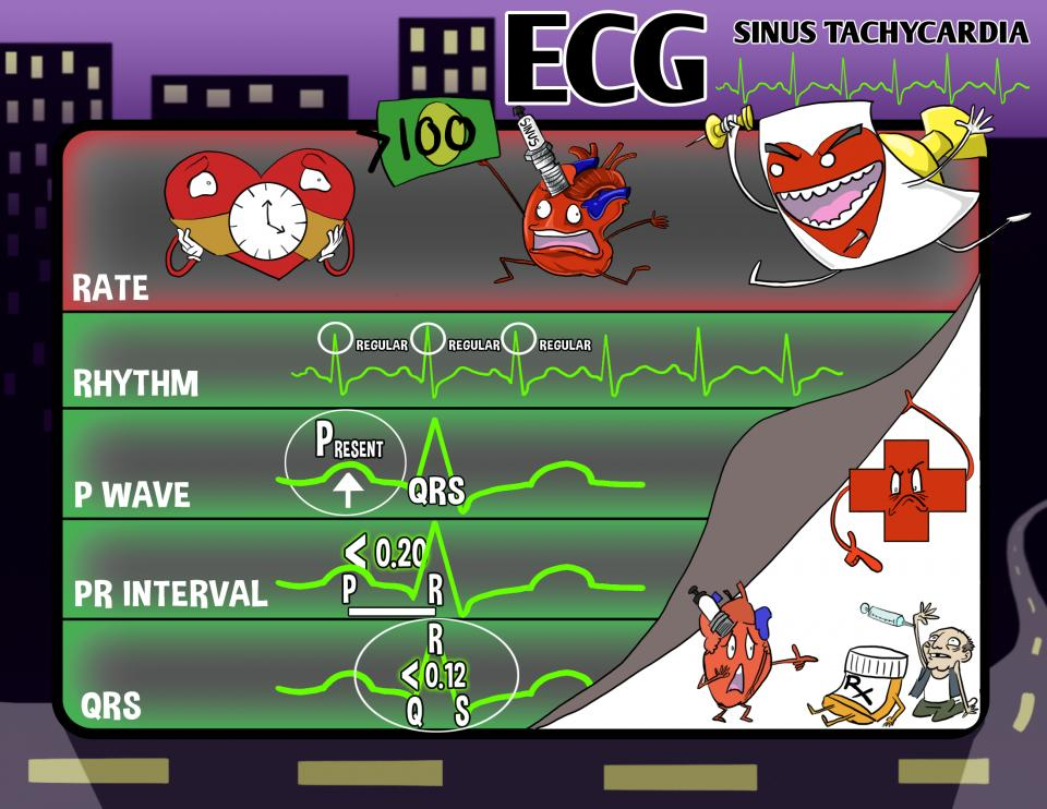 ECG: Sinus Tachycardia
