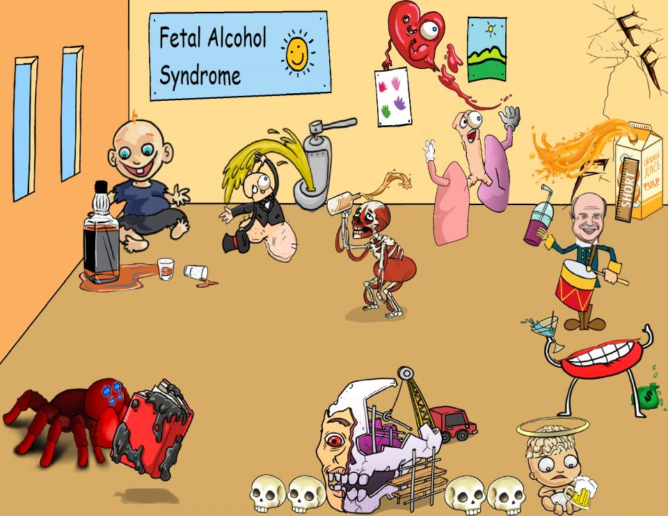 Fetal Alcohol Syndrome Characteristics and Clinical Features