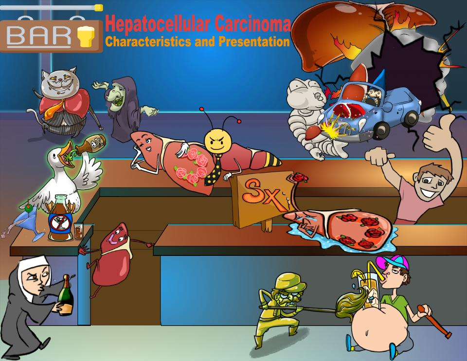 Hepatocellular Carcinoma Characteristics and Presentation
