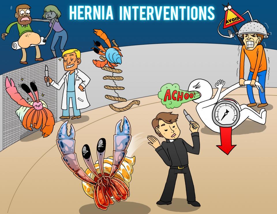 Hernia Interventions