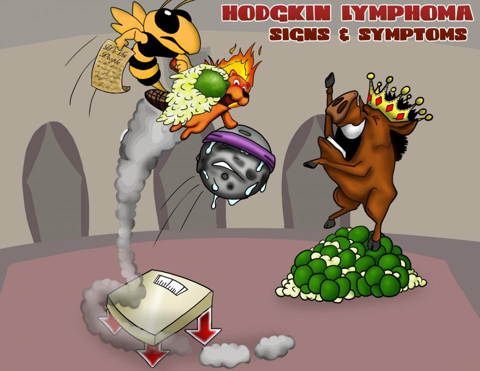 Hodgkin Lymphoma Signs & Symptoms