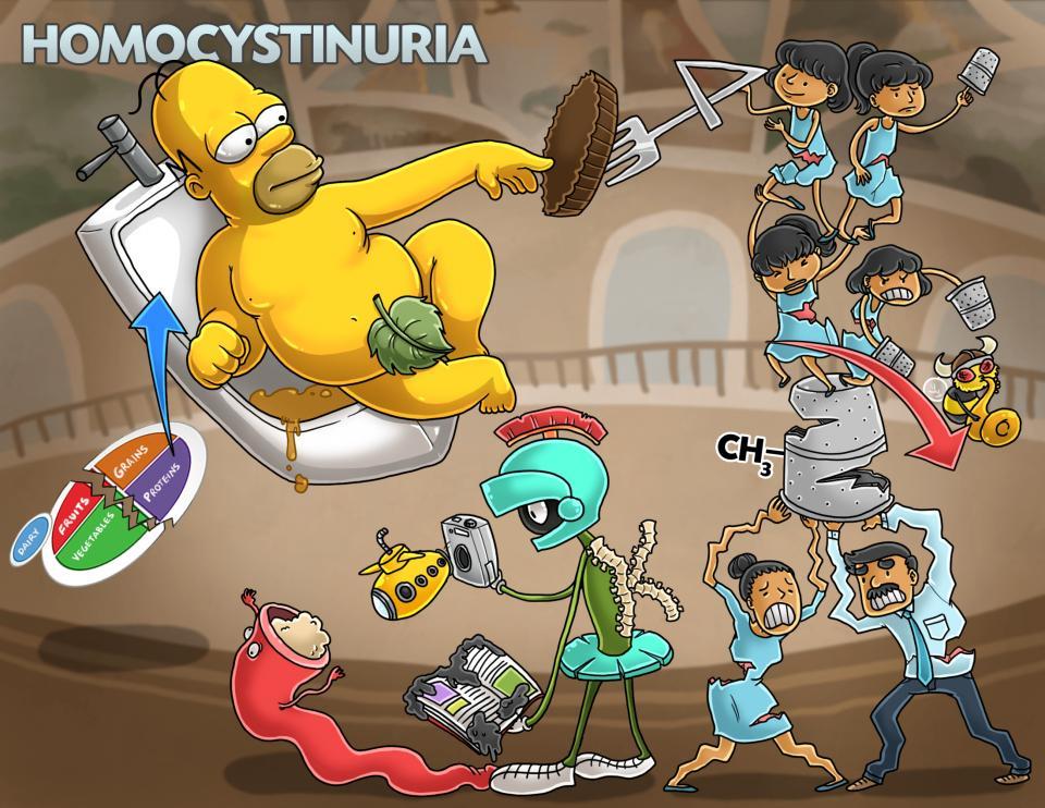 Homocystinuria