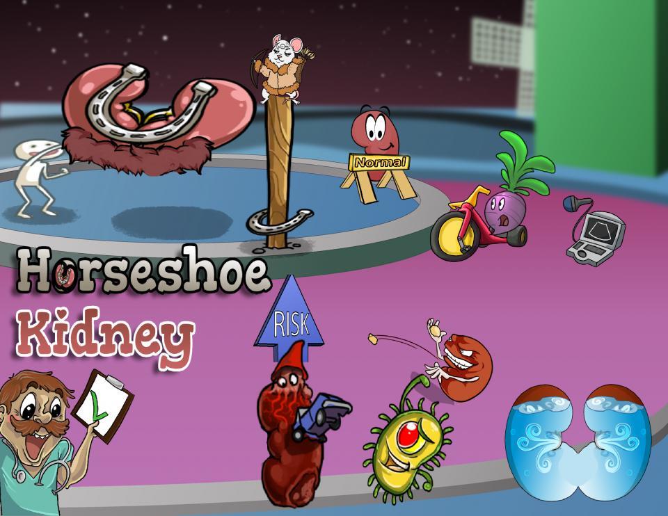 Horseshoe Kidney