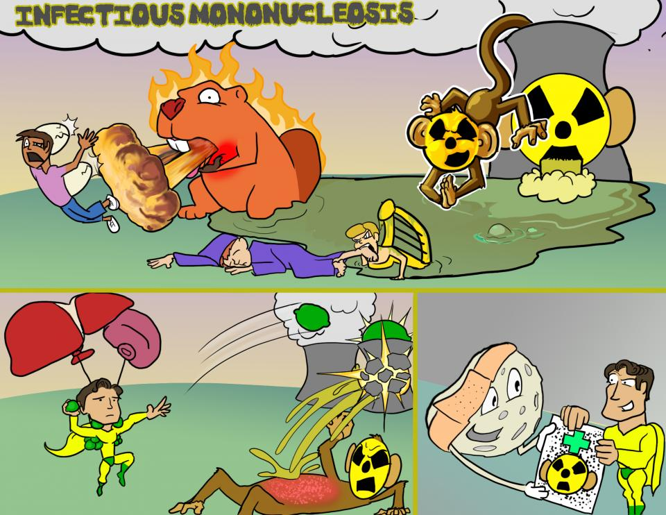 Infectious Mononucleosis