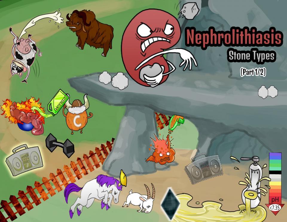 Nephrolithiasis Stone Types (Part 1/2)