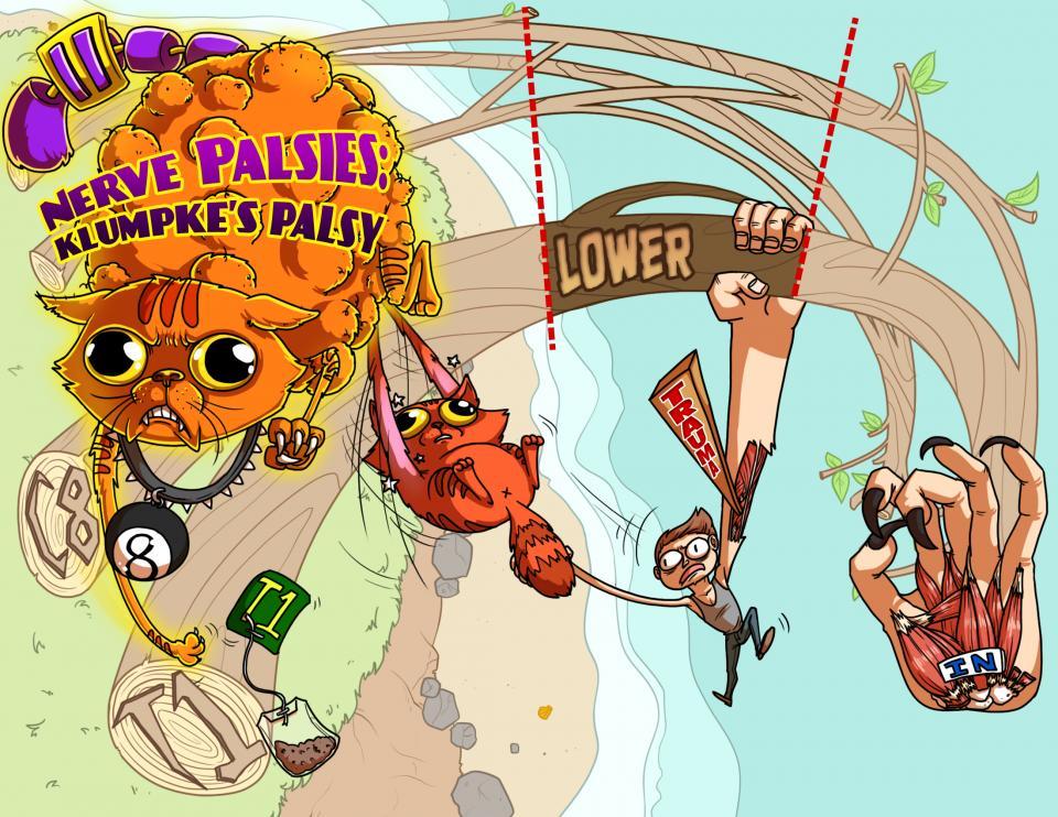 Nerve Palsies - Klumpke's Palsy