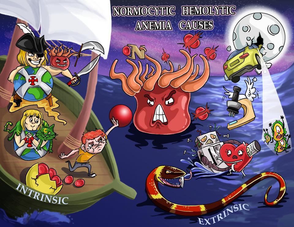 Normocytic Hemolytic Anemia Causes