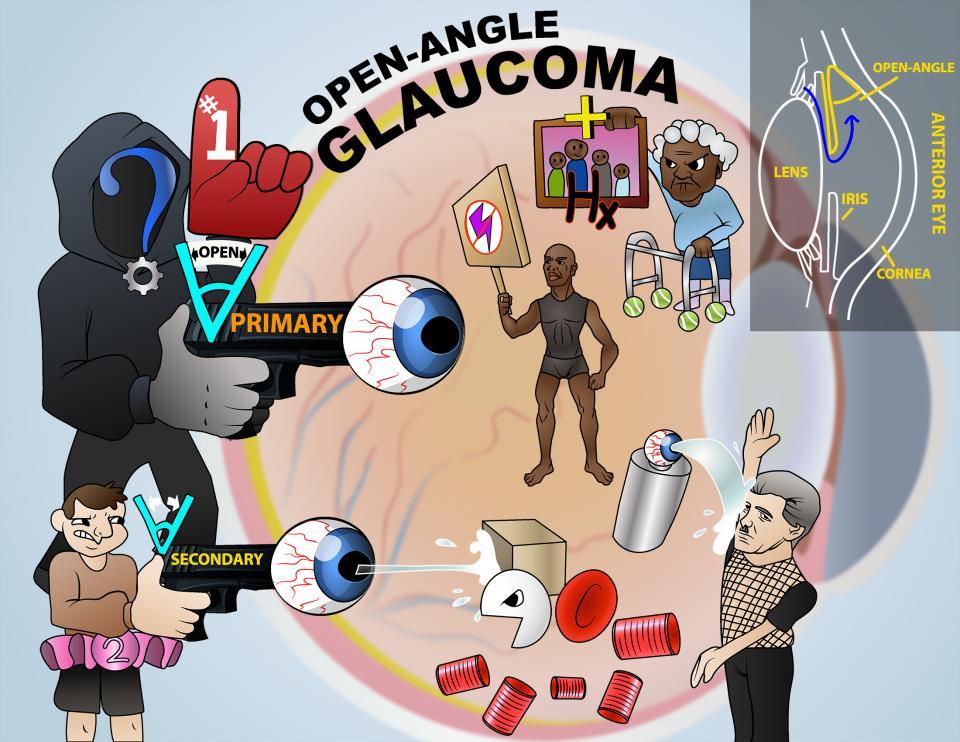 Open-Angle Glaucoma
