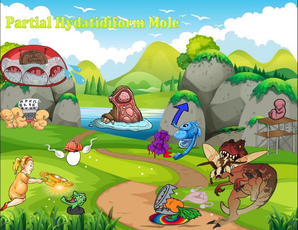 Partial Hydatidiform Mole