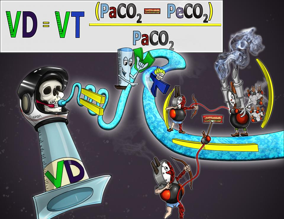 Physiologic Dead Space (VD)