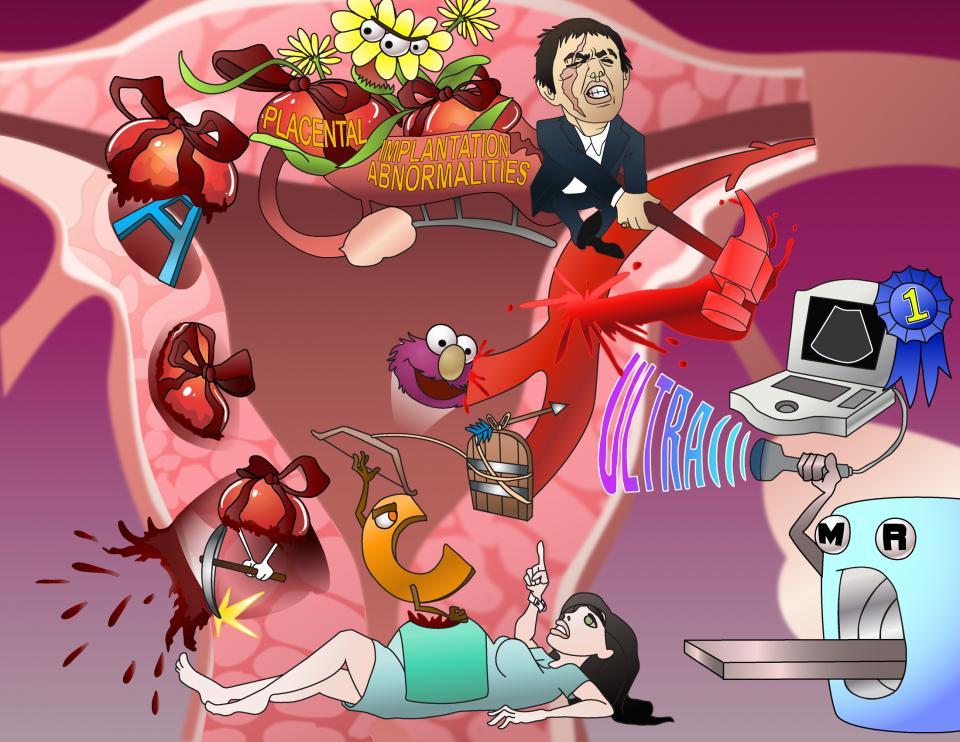 Placental Implantation Abnormalities