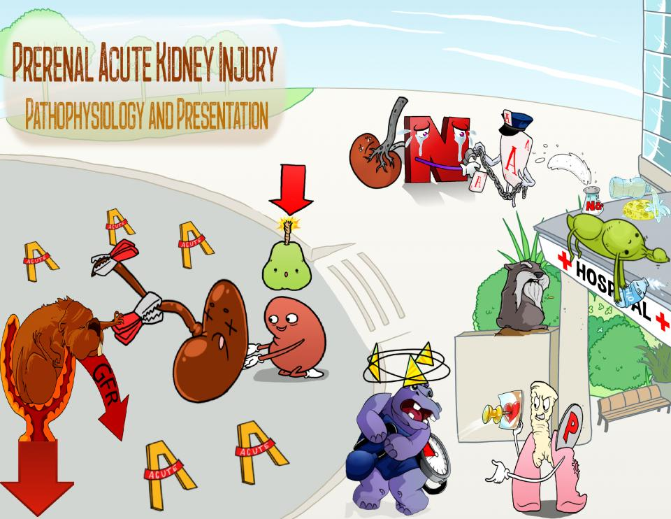Prerenal Acute Kidney Injury Pathophysiology and Presentation
