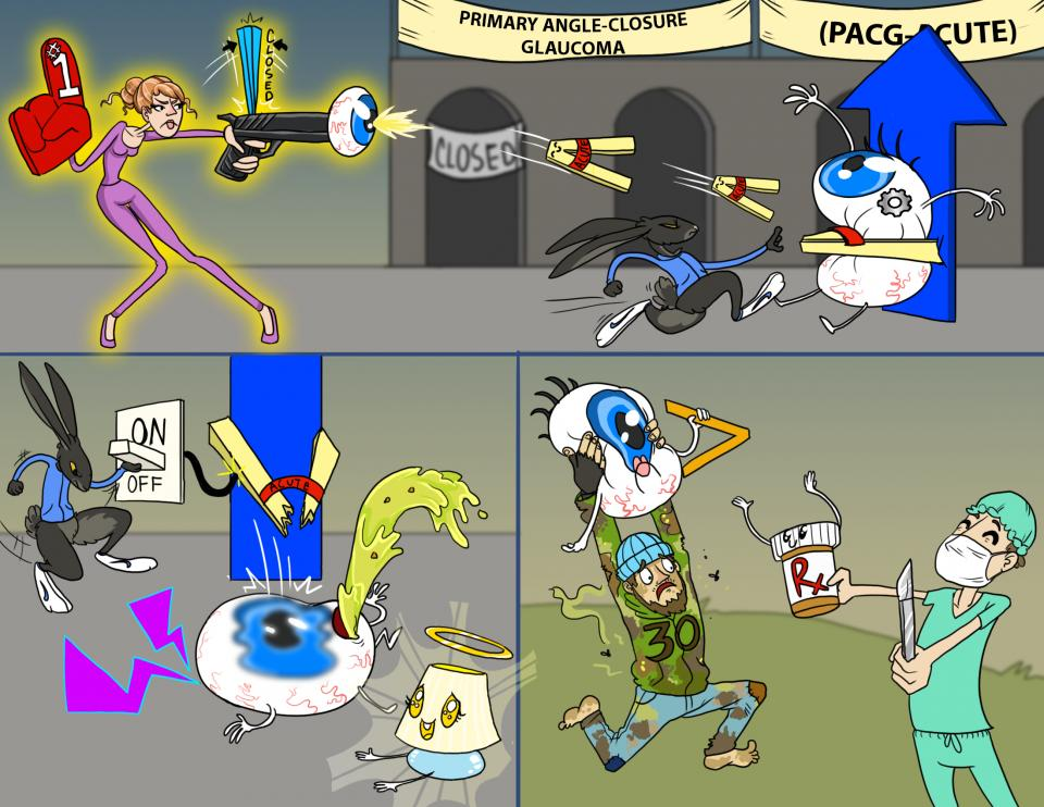 Primary Angle-Closure Glaucoma (PACG - Acute)